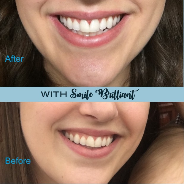 my smile before and after with smile brilliant